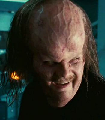 Ugly People With Big Foreheads